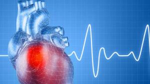 cardiovascular-diseases